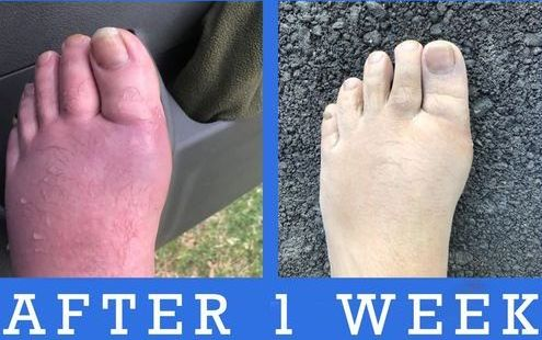 amplifei personal foot swelling